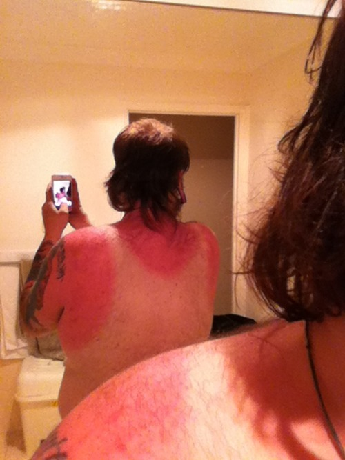 yup first sun burn in like 4 years. this shit sucks.