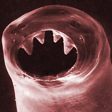 This is a hookworm. According to the CDC, between 576 and 740 million people have this little hell-bastard writhing around in their guts. Photos: AJC1 (And here's a great piece on how the hookworm shaped the economics of the southern US)
