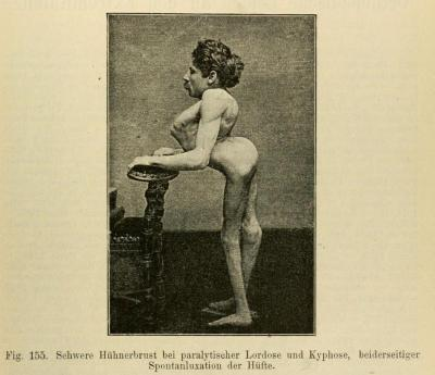 "Extreme case of kyphotic lordosis. Kyphosis: Greek kyphos, ""a hump"" - the over-curvature of the thoracic vertebrae in the upper back. Lordosis: Greek lordos, ""bent backwards"" - the inward curvature of a portion of the lumbar and cervical vertebral column. All spines should be lordotic to an extent, but an excessive inward curvature (often caused by anterior pelvic tilt) can cause many orthopedic problems. Orthopadische Chirurgie. Dr. August Schreiber, 1888."