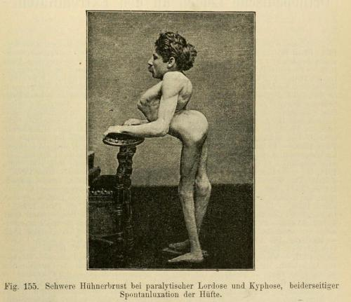 "biomedicalephemera:  Extreme case of kyphotic lordosis. Kyphosis: Greek kyphos, ""a hump"" - the over-curvature of the thoracic vertebrae in the upper back. Lordosis: Greek lordos, ""bent backwards"" - the inward curvature of a portion of the lumbar and cervical vertebral column. All spines should be lordotic to an extent, but an excessive inward curvature (often caused by anterior pelvic tilt) can cause many orthopedic problems. Orthopadische Chirurgie. Dr. August Schreiber, 1888."