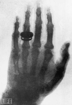 "life:  On this day in 1895, scientist Wilhelm Roentgen discovers X-Rays. When Wilhelm Roentgen took the very first X-ray photograph — a ghostly image of his wife's hand — in 1895, the German physicist not only earned himself the very first Nobel Prize in Physics, he also gave the world the gift of creepy skeletal photographs and seeing bizarre things stuck inside living but unlucky people. Pictured: 1896 X-ray of Roentgen's wife's hand, similar to the very first X-ray picture. Upon seeing her skeletal hand, she reportedly exclaimed, ""I have seen my own death!"" (see more — Extraordinary X-Rays)"