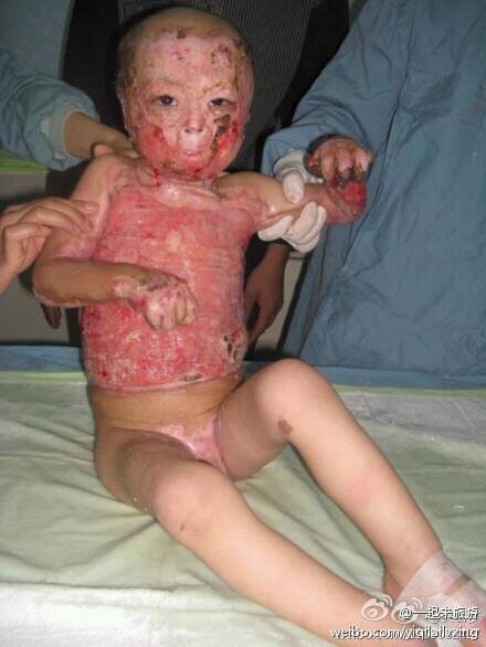 xnrlx:  Take a moment and Reblog this… PRAY for this girl. Her mom doesn't have enough money for her to get the treatment she needs.  STOP REBLOGGING  JUSTIN BIEBER , SELENA GOMEZ or whoever FOR A MOMENT AND PRAY FOR HER .. SHE NEEDS ATTENTION SO MORE PEOPLE CAN HELP HER ..     If you scroll past this without reblogging your heartless..