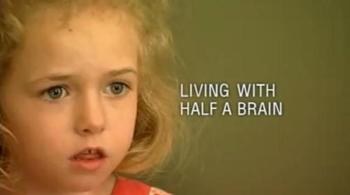 ponury:  Extraordinary People: Living With Half a Brain Six year old Cameron Mott from North Carolina, USA, suffers from  continuous epileptic fits caused by the progressive brain disorder  called Rasmussen's Encephalitis. Extraordinary People follows Cameron  and her family as she undergoes a complex and dangerous operation to  cure her. The report also looks at Sean Goldthorpe, a teenager from  London, England, who is undergoing exploratory treatment and monitoring  to try and pinpoint how his increasing epileptic fits can be stopped. (part 1), (part 2), (part 3)
