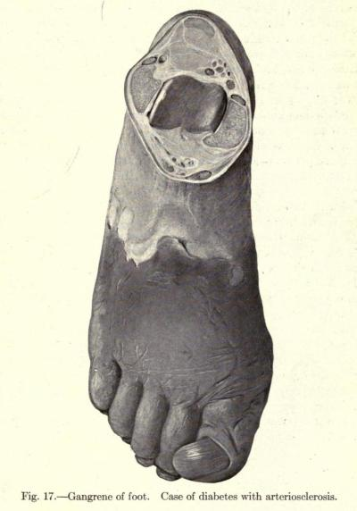 Specimen of gangrenous foot Arterial insufficiency in diabetic patients is still a problem today, and can still cause ulceration and necrosis in extremities if not attended to in a timely way. Gangrene of the feet has long been one of the most common complications of long-term poorly-managed diabetes. A Text-Book of Pathology. W. G. MacCallum, 1916.