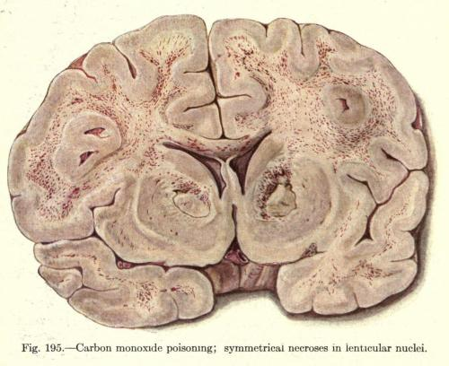 Brain displaying necrosis due to carbon monoxide poisoning In the past, carbon monoxide toxicity was not unheard of, especially during the winter. Cold nights and CO-producing fires lead to a silent death while asleep. Though people were aware that they needed ventilation when fires were burning, frigid cold outside leading to people keeping too much air out, and having a stove burning through the night (so as not to freeze to death…), led to at least several dozen documented deaths throughout the Midwestern United States in the 1890s.  A Text-Book of Pathology. W. G. MacCallum, 1916.