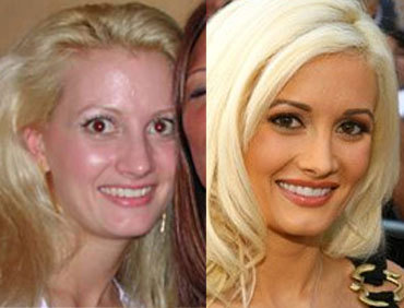 Just like Holly Madison, we all need a little work on our faces to look hot. AGBeat is currently undergoing a minor outpatient facelift and we will be back on the scene in just a bit!