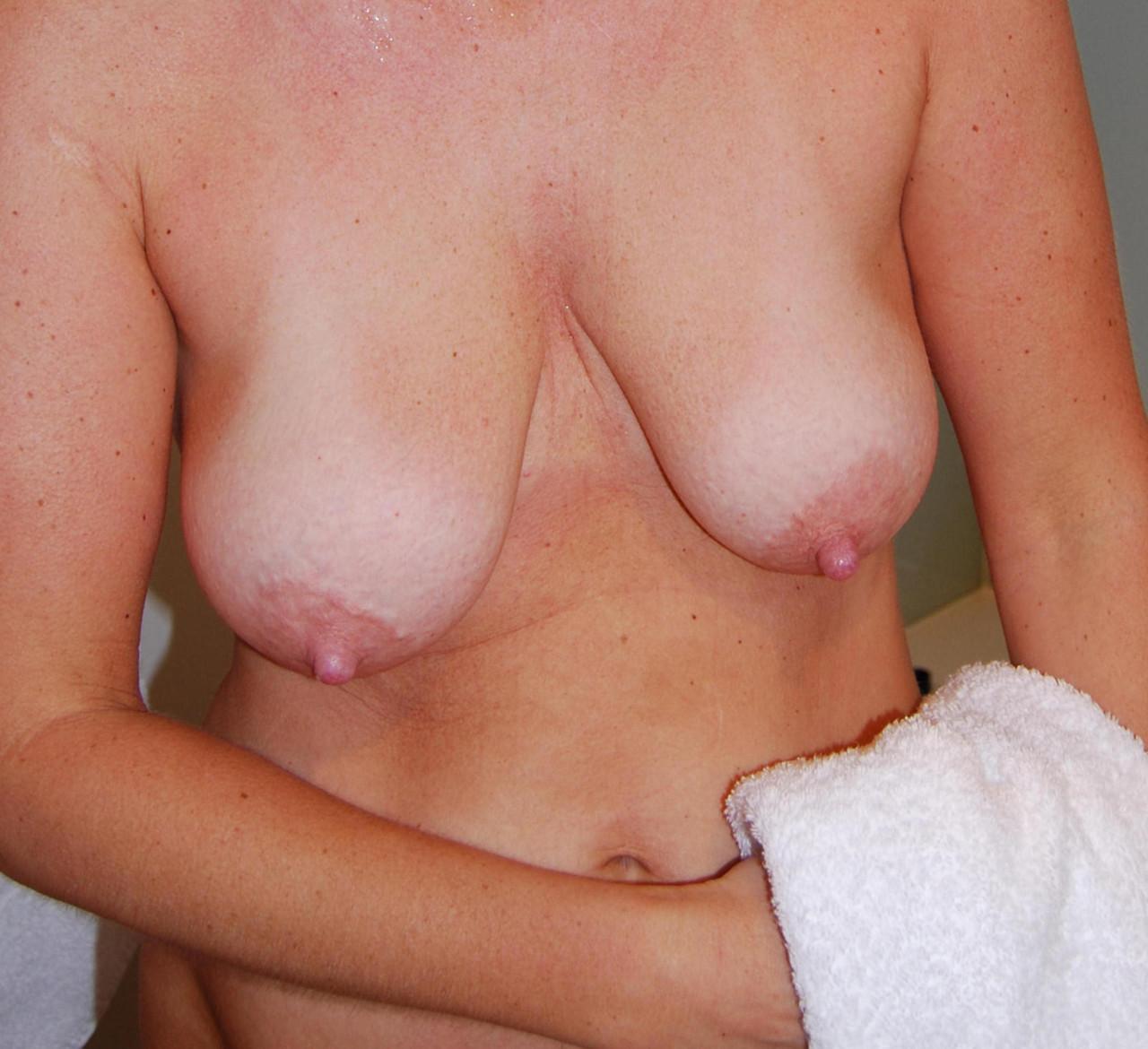 pics stretched boob