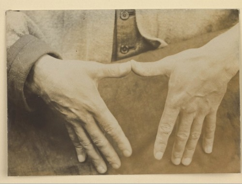 muscavomitoria:  Black and white photograph of the hands of a man with oedema [myxoedema?]. 9 Oct 1907