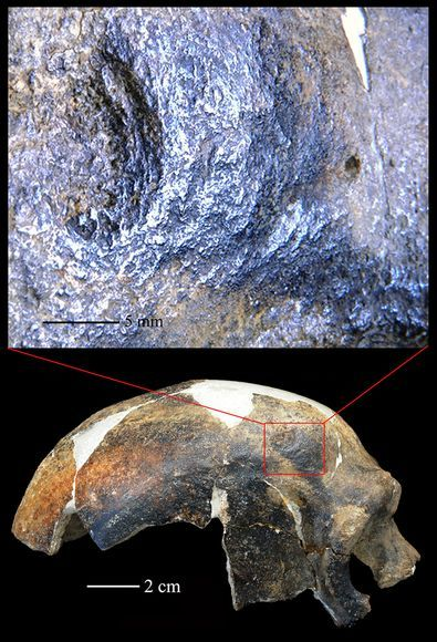 "the-star-stuff:  Bashed Skull Is Earliest Evidence of Human Aggression? Ancient human found in China got ""a real good knock to the head."" A viciously bashed prehistoric skull from China offers some of the earliest known evidence for violence between humans—but also suggests the ancient aggressors had a caring side. The discovery is based on CT scans of a 126,000-year-old human known as Maba Man, so named because his fossil remains were found near Maba in Guangdong Province in 1958. (Related: ""Oldest Modern Human Outside of Africa Found."") The scans revealed a skull fracture caused by blunt force trauma. The victim was probably clubbed with a weapon such as a stone, heavy bone, or lump of wood, according to a new study. ""This person had a pretty serious injury—it would have been a real good knock to the head,"" said team member Lynne Schepartz, of the University of the Witwatersrand in South Africa. The blow likely caused bleeding and a concussion—inducing nausea, vomiting, and perhaps even brain damage—leaving the victim prone and helpless, Schepartz said. (continue reading)"