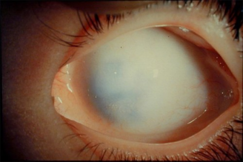 Sclerocornea is a congenital anomaly of the eye in which the cornea blends with the sclera, having no clear-cut boundary.