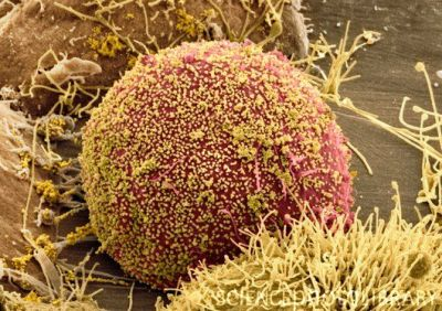 Human immunodeficiency virus (HIV) The above image is a coloured SEM of HIV (yellow) budding from host cells (red). General notes: HIV is part of the retrovirus family, which causes AIDS (acquired immunodeficiency syndrome), resulting in progressive failure of the immune system. It can be transferred in blood, semen, vaginal fluid, pre-ejaculate and breast milk. HIV has a long latency/incubation period. HIV infects vital cells in the immune system, particularly CD4+T helper cells (a type of white blood cell called lymphocytes). The infection of the HIV virus causes the number of T-helper cells to decline, making the body more susceptible to opportunistic infections (such as tuberculosis). It is these secondary infections (or malignancies) that will eventually cause death. A2 level notes on how HIV works: The HIV envelope has surface proteins, which recognise and bind to surface proteins on T-helper cells. HIV then infects the T helper cell and viral mRNA enters the host. Note: Reverse transcriptase found in the virion is an enzyme that makes DNA from mRNA. This DNA codes for viral coat proteins and recognition proteins. DNA made by reverse transcriptase can be called complementary DNA (cDNA) as it is complementary to mRNA. cDNA passes from the cytoplasm of the T-helper cell into the nucleus (integrase protein helps cDNA pass through the nuclear pore and inserts DNA into the host cell chromosome). Viral cDNA is transcribed to viral mRNA. Viral mRNA is then translated to protein capsomeres. Virions self-assemble and cell lyses as virions exit the host cell (exocytosis). A2 level notes on the course of a HIV/AIDS infection: Stage 1: Acute HIV syndrome. Between 3-12 weeks post-infection, HIV antibodies appear in the blood (now HIV positive). Symptoms experienced during this time may include fever, headache, dizziness and swollen glands. Stage 2: Asymptomatic/chronic stage. All symptoms disappear once the infection has been established. Virus is now latent. The duration of this stage depends on health, immunity, genetics and access to medication. During this stage the virus replicates, infecting T helper cells but being restrained by T killer cells. Towards the end of this stage the immune system becomes overwhelmed and secondary infections begin to develop. Stage 3: Symptomatic stage. Eventually the viral load becomes so great that the whole immune system starts to fail. The normal T helper cell count falls from 500 to 200 per mm3 of blood. Symptoms now suffered include weight loss, fatigue, diarrhoea, night sweats and low-grade infections such as candidiasis (thrush). This stage rapidly progresses to the final stage. Stage 4: Advanced AIDS. T helper cell numbers continue to fall. Symptoms include severe weight loss, dementia (as brain cells become infected), cancers (e.g. Kaposi's sarcoma) and serious infections (e.g. tuberculosis (note: HIV is the main cause for an increase in TB infection) and cryptococcal meningitis). The final stage of advanced AIDS is always death.