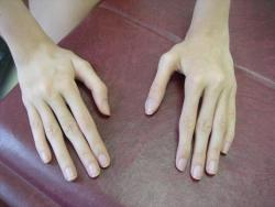 "mellifluis:   Arachnodactyly or ""spider fingers"", is a condition in which the fingers are abnormally long and slender in comparison to the palm of the hand.  why can't i have this"