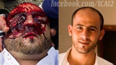 WARNING: EXTREMELY GRAPHIC EXAMPLE OF INHUMANE ISRAELI WAR CRIMES Mustafa Tamimi, murdered in cold blood by the Israeli army. We will never forgive. We will never forget.