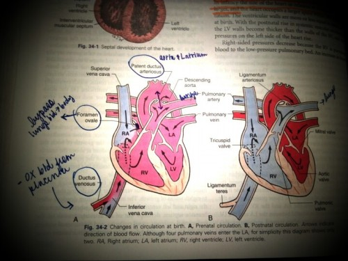 Cardiovascular System, I'm about on my way to learn about it, well, perhaps it's easy, by the look of this picture. But yeah it's not that's not exactly look like this when you see it from a cadaver.
