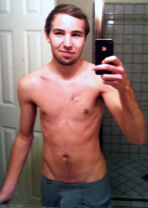 ttamazing:  Submitted by officialryanjames Yes, that's a scar on the left side of my chest. It's from when I had cancer.  And you kicked it's ASS.   Ohai, that's me.