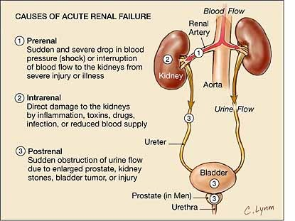 **Reblog** bloopz:  Causes of Acute Renal Failure.