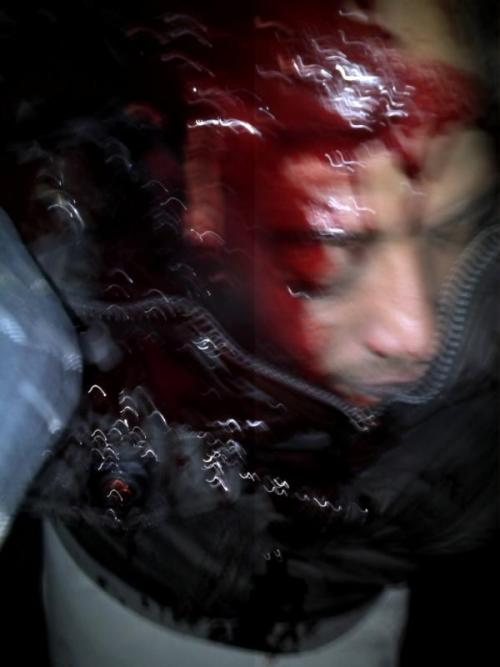 photo of a protester killed by a sniper bullet from army, entered his head from behind to front
