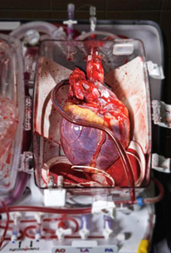 geneticist:  A human heart ready for transplant the heart can be kept warm and viable for many hours in this device. Photo by Robert Clark.