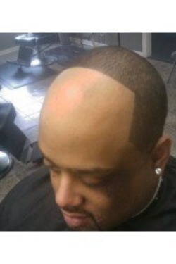 But WHY would you do this to yourself?!?! Just go BALD, nigga!!! LMFAO
