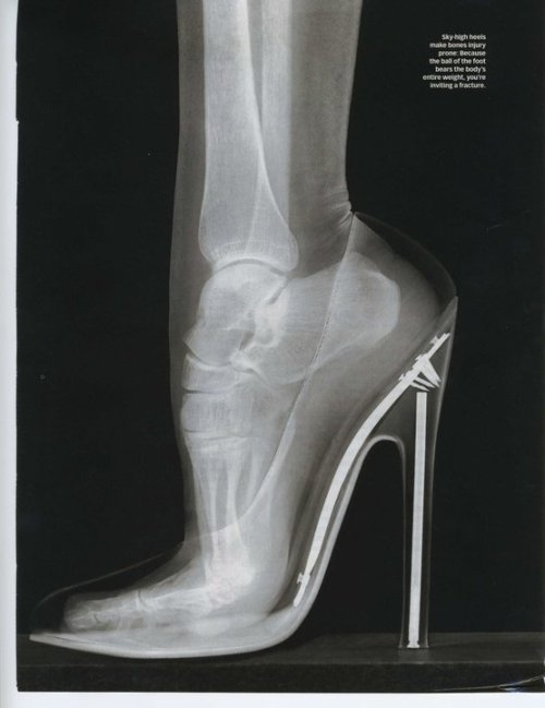 Fashion X-Ray (via designersgotoheaven)