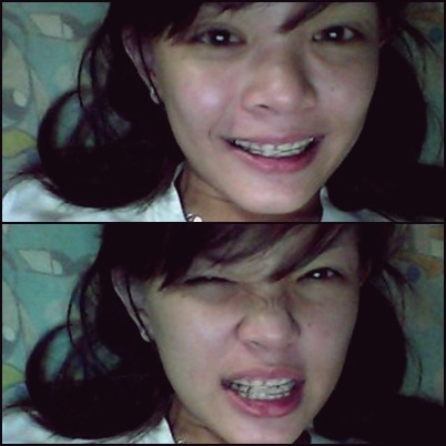 Tonight, I'm wearing my retainers again. Must wear it always and forever na para di ako mapagalitan ng mommy ko and para naa nay paglambo sa akong ngipon na lagyo. Haha! =)) Makatamad mag retainers, really :|