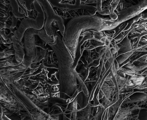 Blood vessels grow out of control in this environmental scanning electron microscopy image of a diseased retina. In diabetic retinopathy and retinopathy of prematurity, blood vessels grow abnormally in the back of the eye and leak blood, causing blindness. At least 4.1 million Americans with diabetes are affected. Research has shown that inexpensive omega-3 supplements may ease retinopathy. A new study of mice published Feb. 9 in the journal Science Translational Medicine finds that the supplements do so by reducing runaway blood vessel growth. Clinical trials in humans are underway.