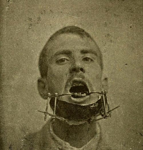 sutured-infection:  Apparatus to mend a broken jaw, from Karl Witzel's Chirurgie und Prothetik bei Kiefererkrankungen, 1905