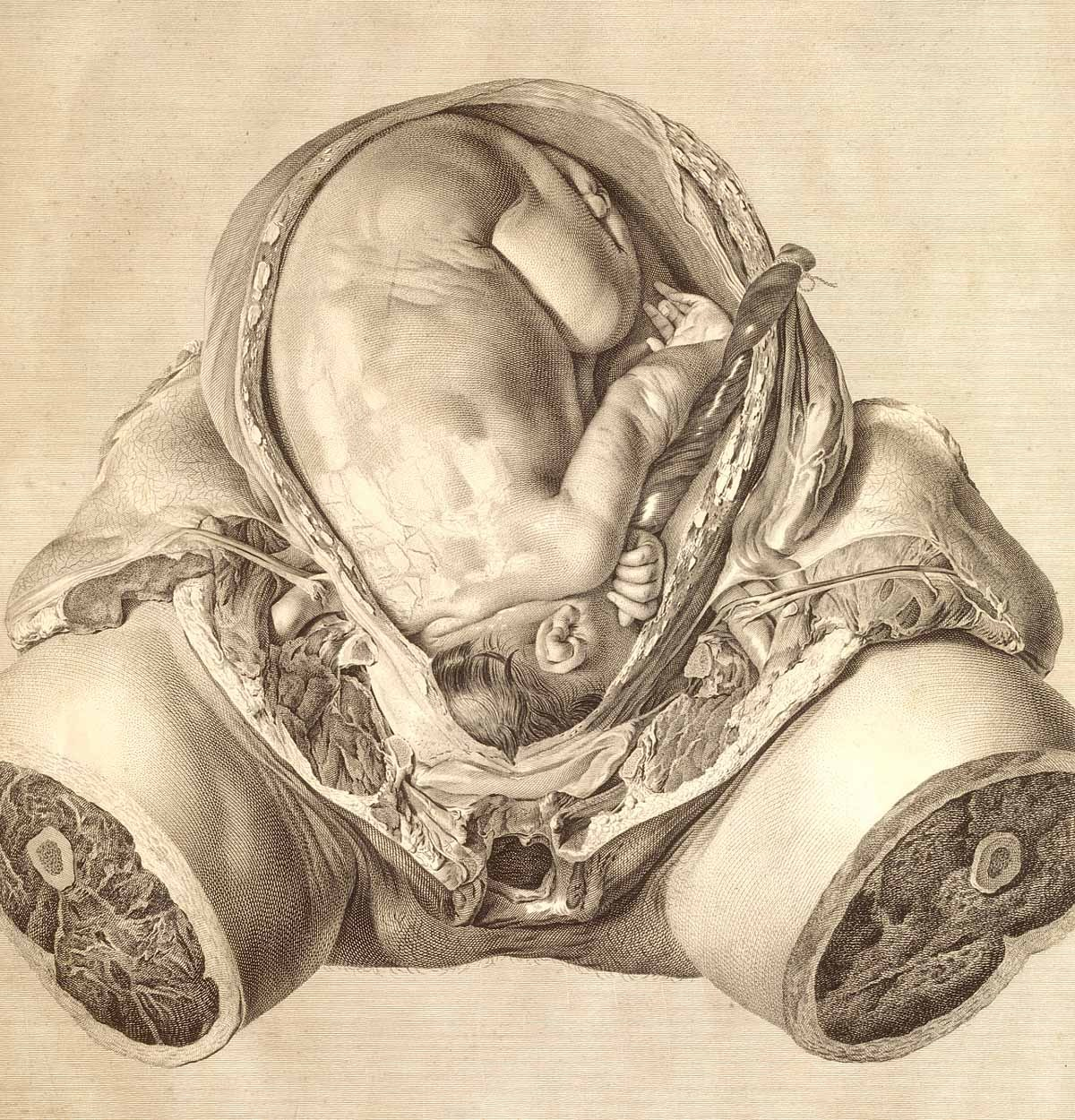 "The Anatomy of the Human Gravid Uterus Birmingham, 1774. Copperplate engraving. National Library of Medicine. William Hunter(1718-1783)[anatomist] Jan van Riemsdyk(fl. 1750-1788)[artist] An eminent anatomist and obstetrician, Hunter confined himself to a  specific topic (late pregnancy) and ""subject"" (the dissection of a woman  who died near the end of term). Illustrations that represent only ""what  was actually seen,"" Hunter argued, will carry ""the mark of truth"" and  be ""almost as infallible as the object itself.""  From Here"