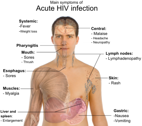 Signs and symptoms of Human immunodeficiency virus (HIV).