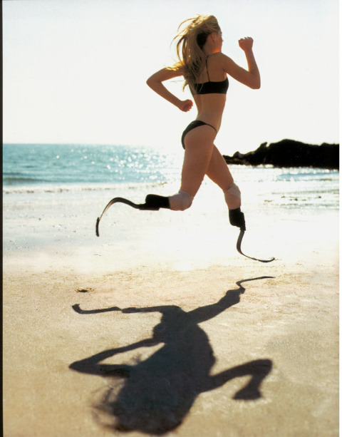 "Athlete Aimee Mullins ""Born without fibulae in both legs, Aimee's medical prognosis was discouraging; she was told she would never walk, and would likely spend the rest of her life using a wheelchair. In an attempt for an outside chance at independent mobility, doctors amputated both her legs below the knee on her first birthday. The decision paid off. By age two, she had learned to walk on prosthetic legs, and spent her childhood doing the usual athletic activities of her peers: swimming, biking, softball, soccer, and skiing, always alongside ""able-bodies"" kids."""