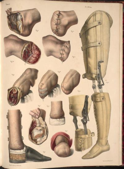 "biomedicalephemera:  Amputation of foot and leg with prostheses examples Given that we largely only need our legs for balance and ambulation, and that we're (usually) perfectly capable of balancing with one leg, making functional prostheses for the lower extremities was much simpler than making functional arms and hands. Heck, even a peg leg could work fine in most situations, at least if it was fitted well. Most prostheses in the early-to-mid 19th century were focused more on aesthetics than on true usability. They looked like the real thing, and could easily be masked by pants and shoes, but they were often clunky, heavy, and ill-fitted (causing sores at the articulation point). Some doctors were trying to work on functional knees for prosthetic legs by that point, but those were even worse to use, as the ""joint"" was difficult to control. Traité complet de l'anatomie de l'homme comprenant la medecine operatoire, par le docteur Marc Jean Bourgery. Nicolas Henri Jacob (artist), 1831."