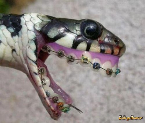 "Teenage Snake with Braces ""I wish I'd never been hatched."""