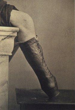 tuesday-johnson:  ca. 1865, [photograph of a prosthetic boot], M. Fontaine via A Morning's Work: Medical Photographs from the Burns Archive & Collection, Stanley B. Burns