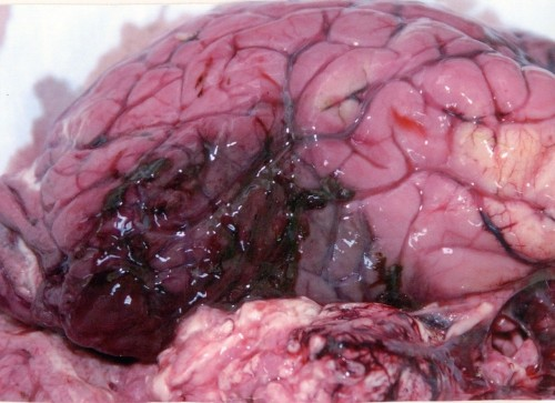 The right frontal lobe of a human brain showing subarachnoid haemorrhage and massive contusion