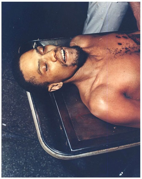 suiciderascal:  lawbot:  kettir:  Autopsy photograph of Malcolm X.  boss  He looks like Cudi