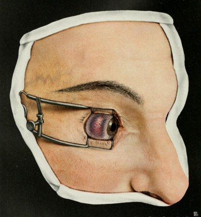 sutured-infection:  Scleritis, from Richard Greeff's Atlas of external diseases of the eye, 1914