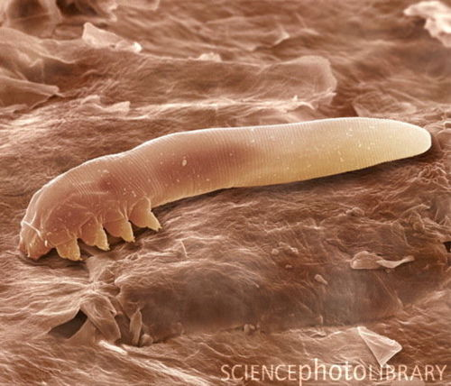 Demodex folliculorumD. folliculorum loves you and you have no idea that he even exists, much like that girl you liked in high school. You heartbreaking asshole. If you do know about this fellow you probably think he's gross and creepy (again much like that girl thought of you). D. folliculorum is one of two species of adorably named face mites (the other being D. brevis). This small mite spends its time snuggling into your hair follicles where it feeds off your dead skin, hormones, oils and other skin secretions. Also they're incredibly common with half of all adults being home to these critters. Another reason you may be unfamilar with D. folliculorum is that they only really come out at night, while you're sleeping as they're averse to light. Fortunately you don't suffer any harmful effects as they're fairly tidy tenants of your face real estate, unless you have a hypersensitive immune system. Sleep well.