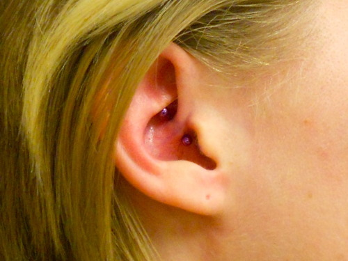 And another daithe by Oscar, this time with a titanium curved barbell from our friends at Anatometal!