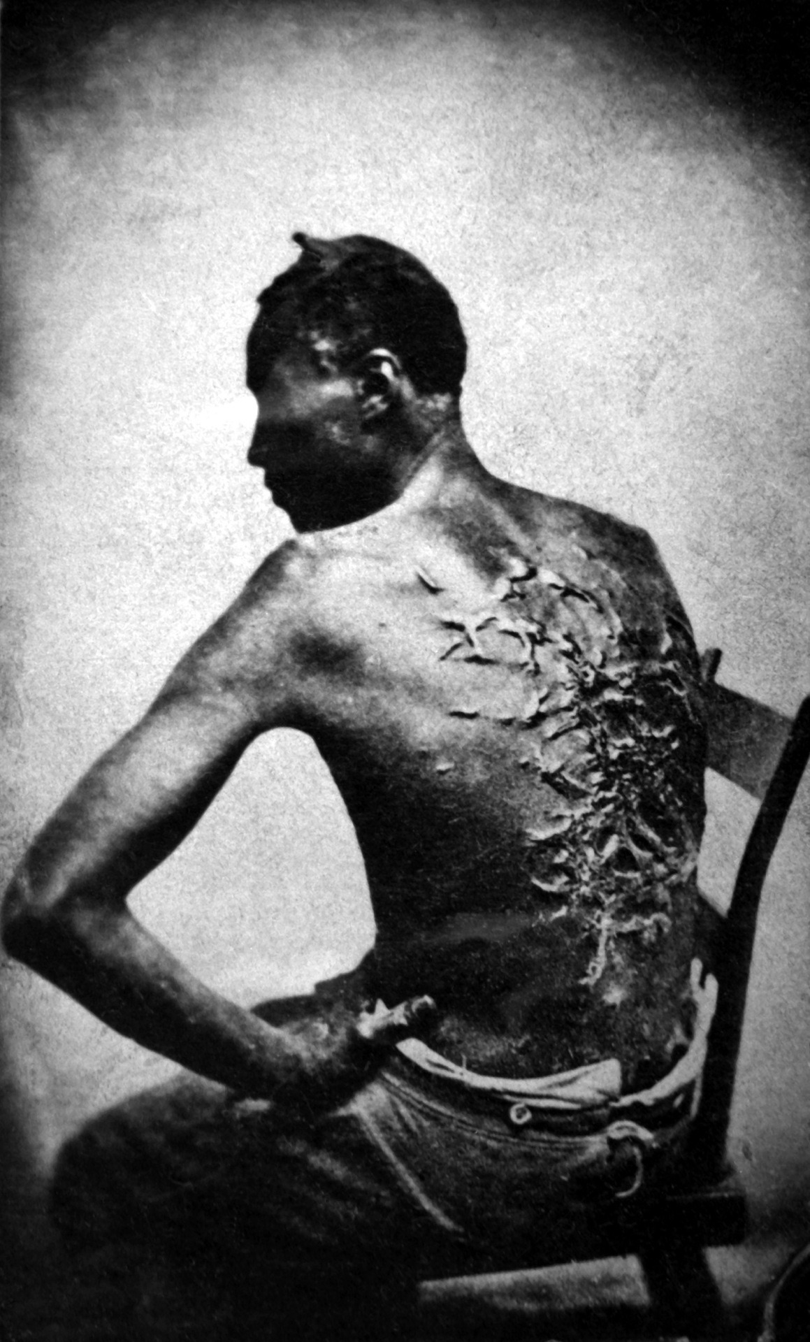 whipped African American slave, Baton Rouge, Louisiana, April 2, 1863