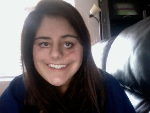 "mermaidsondrugs:  Hi my name is Shainah. This is me without the makeup. Last night 3 girls and 1 boy verbally abused me. I was called a circus freak, candle wax face, ugly bitch, deformed girl, ""it"", a monster, wierd looking creature and many other hurtful names. I was born with a bilateral clef lip protruding to my left eye. The umbilicul cord was wrapped around my face in the womb so my face didnt fully develop. I wasnt born with cheek bones because like I said my face didnt develop correctly. They had to take my rib and use it as replacement cheekbones. My eyes arent perfect either. I had a tumor in the right one. I wasnt born with any nasal passages. They had to pierce the inside of my nose. For an entire year my mom would have to put tubes down my nose to my lungs so I could breathe.  I'm not telling my story for sympathy or ""reblogs"" (reblog if you want) My main message is that after having 27 surgeries I am strong and I will not let words hurt me. Don't be ignorant and make fun of someone whose story you know nothing about. I'm lucky that I'm alive.  My scars don't define me. Instead they tell a story. They tell everyone around me, AND remind me each day that I am a survivor and I am a strong woman. Even the strongest of people break down sometimes. Please remember that words hurt. I may be strong but some girls aren't.  shes beautiful The world has not yet fallen apart, because of people like you. Thank you for your strenght <3"