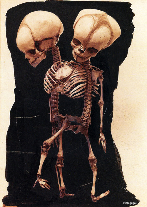 "vintagegal:  Ectopagus (laterally conjoined) dicephalus dibrachius tripus twins. ""From Part IV of the collection of pictures of congenital abnormalities that form the basis of the four-volume atlas Human Monstrosities by Barton Cooke Hirst (1861-1935) and George Arthur Piersol (1856-1924), published 1891-93."