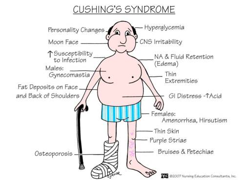 cupcakern:  Cushing's syndrome or hypercortisolism. A syndrome resulting from your body being exposed to cortisol for a long period of time, such as Prednisone.