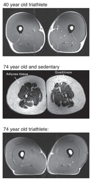tumbledore:  Cross-sectional MRI scans of the legs of a 40 year old triathlete vs a 74 year old triathlete vs a 74 year old sedentary person   Holy crap.