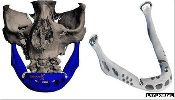 A 3D printer-created lower jaw has been fitted to an 83-year-old woman's face in what doctors say is the first operation of its kind. The transplant was carried out in June in the Netherlands, but is only now being publicised. The implant was made out of titanium powder - heated and fused together by a laser, one layer at a time. Technicians say the operation's success paves the way for the use of more 3D-printed patient-specific parts. (read the full article: BBC News - Transplant jaw made by 3D printer claimed as first) 1) This is excellent news for the advancement of cybernetics. 2) Hello, 5th Element-style let's-print-up-a-perfect-being!