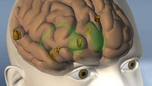 Deep brain stimulation enhances memoryTiny electrical shocks to the brain just before learning a new task strengthened memory in a handful of patients with epilepsy.
