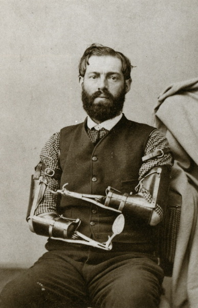 Samuel Decker was a Civil War veteran who built his own prosthetics after loosing his arms in combat.