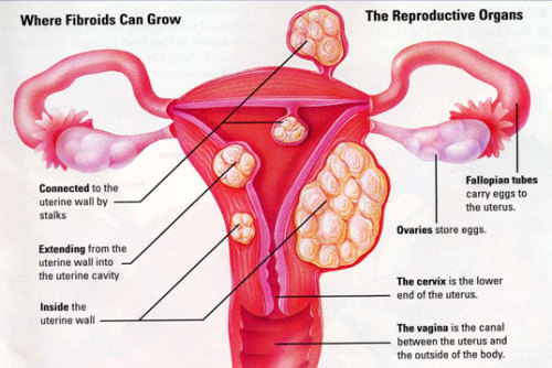 WOMEN'S HEALTH WEDNESDAY Uterine Fibroids. What the heck are those, right? They are benign tumors that grow in and around the uterine walls. In extremely rare cases (less than .1%) they lead to cancer. They come in all sizes (from the size of a pea to the size of an orange) and grow in all areas of the uterus - so their symptoms and treatments are dependent on size/location.  Smaller fibroids are usually asymptomatic. They may never have to be treated. In other cases, the fibroid may place pressure on the bladder/bowel causing urinary retention/frequency or painful defecation and constipation. They may cause other symptoms such as back pain or painful/heavy menstruation. Rarely, they can interfere with ovulation which can lead to infertility.  Fibroids are fairly common, especially in the African-American population and women in their later reproductive years. There is a correlation between patients with fibroids and patients with hypertension. They can be diagnosed by use of ultrasound or MRI and may even be palpated during a gynecological exam. Like with reproductive cancers, there's no surefire prevention.  As stated before, treatment varies on severity. Tumor-shrinking medications may be prescribed. One method of treatment is cutting off the blood circulation to the fibroids. Radiation can be used. Unfortunately, hysterectomies are typically the go-to treatment and may even be suggested for patients with asymptomatic fibroids - although I hope that in coming years this trend dies down and alternative, less invasive treatments take over.