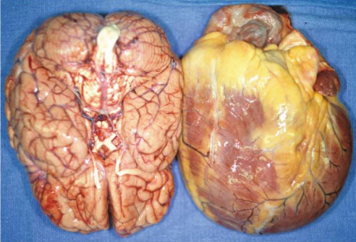 forensicsandpathology:  Cardiomegaly related to a case of morbid obesity, where the size of the heart approximates that of the brain.