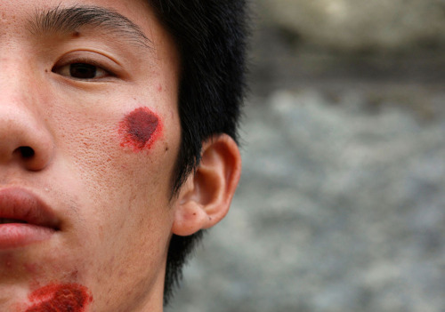 theatlantic:  In Focus: Rising Protests in China  A wounded villager from Wukan is seen after a riot with the police the day earlier in Lufeng, a city of 1.7 million, in the southern Chinese Guangdong province, on September 23, 2011. Hundreds of villagers in southern China protested on Friday over a government seizure of land, the latest outbreak of trouble in Guangdong province that illustrates growing public anger at the practice of land grabs. See more. [Image: Reuters]