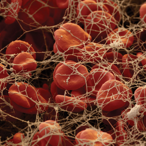 medicalschool:  Red blood cells (erythrocytes) trapped by fibrin threads